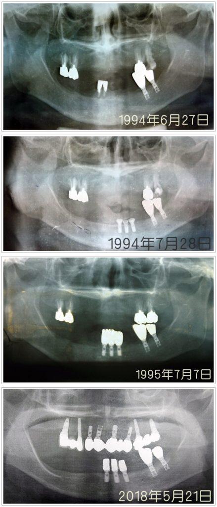KLT川口メモリアル歯科症例1994-2018