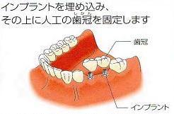 沼津KLT川口メモリアル歯科インプラント症例24年後