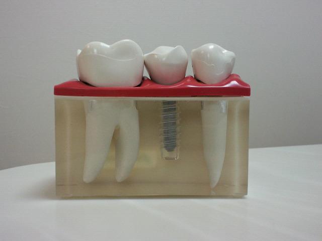 インプラン治療のご相談は静岡県沼津市KLTメモリアル歯科まで